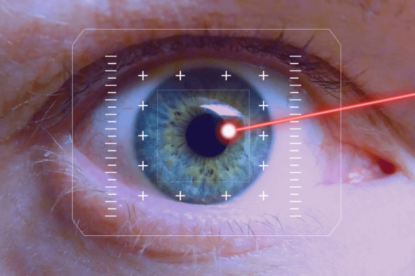 Do I need Cataract surgery? – Infinity Eye Clinic